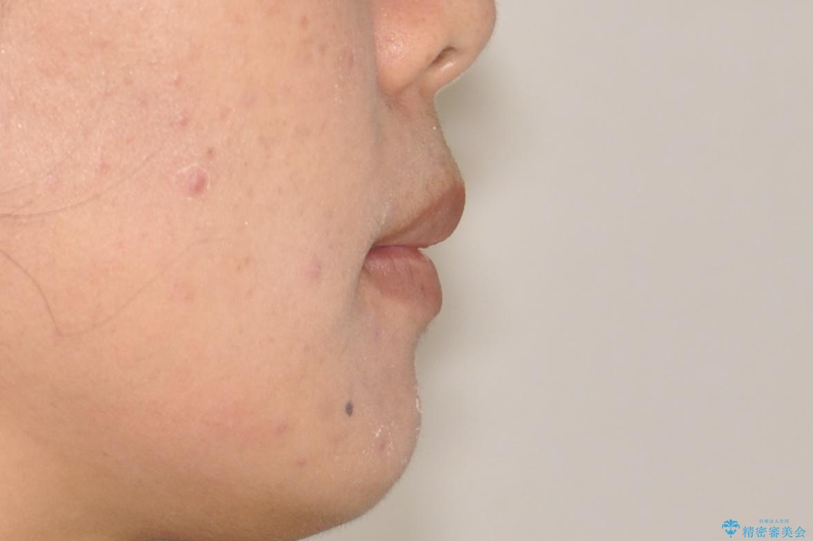 上下の歯のガタガタ ワイヤーでの抜歯矯正で整った歯並びへの治療後(顔貌)