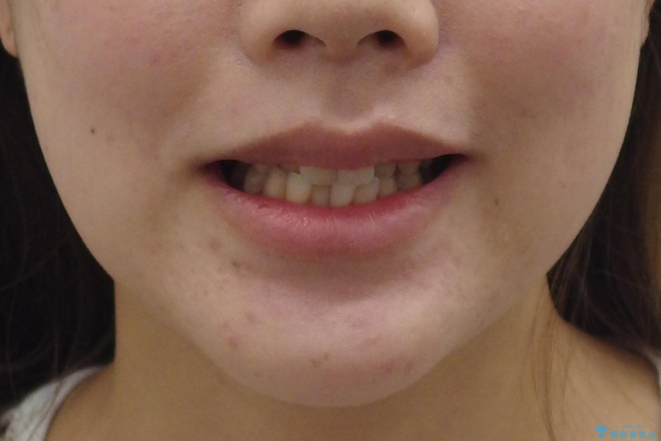 上の前歯が一部引っ込んでいる 下のがたがた マウスピース矯正の治療前(顔貌)
