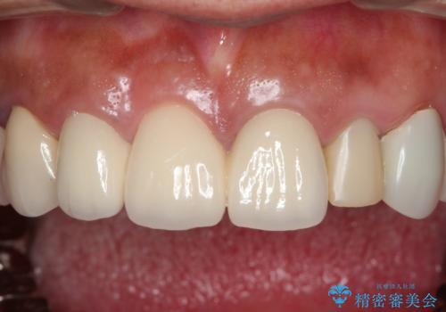 汚れてしまった前歯の仮歯 オールセラミッククラウンにて自然にの治療前