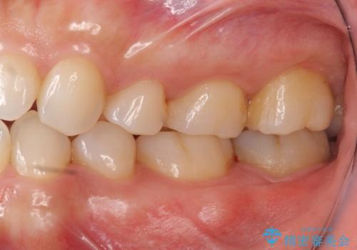 他院で次に虫歯になったら治せないと言われた 歯周外科手術でしっかり治療(APF)の治療前