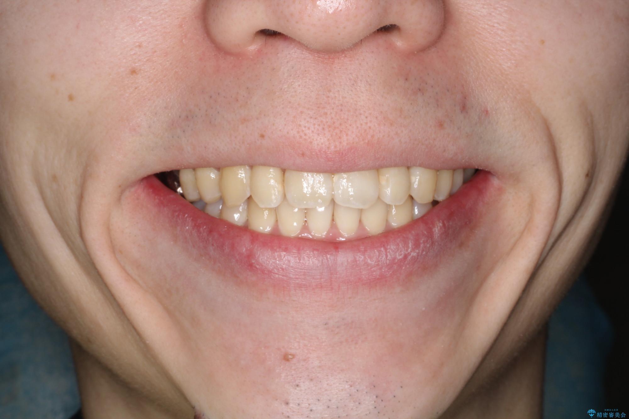 前歯でものが噛み切れない インビザラインによるオープンバイトの治療の治療後(顔貌)