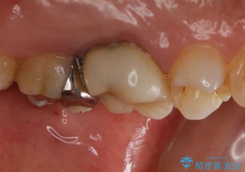 痛みの続いた歯を原因から治療の治療前