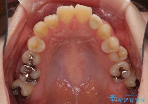 内側に倒れた歯並びの改善 クリアブラケットによる矯正治療の治療前