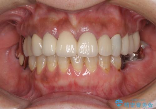 汚れてしまった前歯の仮歯 オールセラミッククラウンにて自然にの治療後