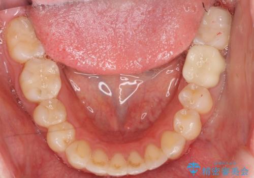 セラミックインレー 下の一番奥歯 歯ぐきの厚みを減らしてぴったりに入れます(ディスタルウェッジ+骨外科)の治療後
