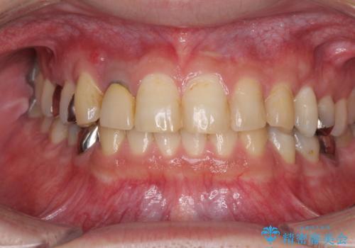 割れてしまった前歯 インプラントによる補綴治療の治療前