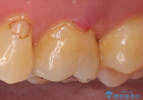 オールセラミッククラウン 精密根管治療~神経が死んでしまった歯の治療~の治療前