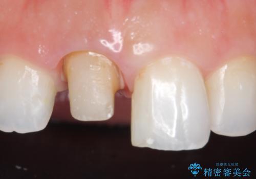 オールセラミッククラウン(スペシャル) 不揃いな前歯を綺麗にの治療中