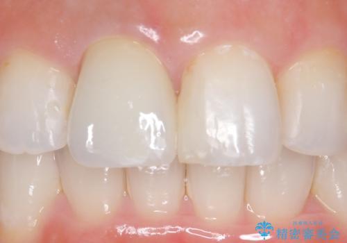 オールセラミッククラウン(スペシャル) 不揃いな前歯を綺麗にの治療後