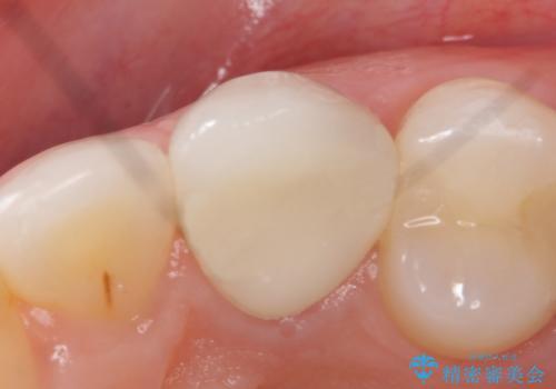 オールセラミッククラウン(スペシャル) より綺麗な歯への治療後