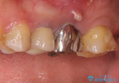 奥歯が痛い。根管治療~オールセラミッククラウンの治療の治療前