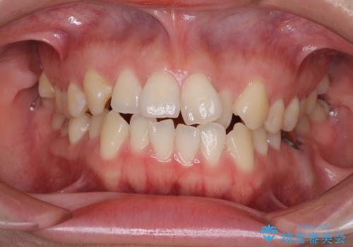 前歯のデコボコをワイヤー矯正できれいにの症例 治療前