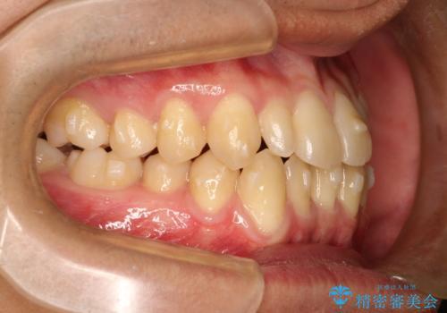 前歯のガタガタの矯正 下顎の前歯を1本抜歯してのインビザライン矯正の治療中