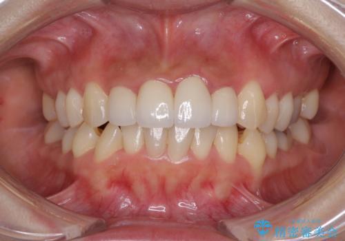 前歯のオールセラミック 腫れている歯肉が改善の治療後