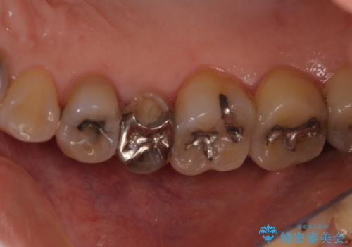 前歯のすきっぱ&奥歯の虫歯 セラミッククラウンで徹底的に治すの治療前