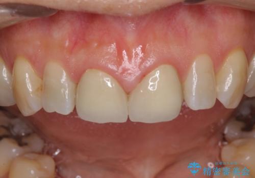 前歯のすきっぱ&奥歯の虫歯 セラミッククラウンで徹底的に治すの治療中
