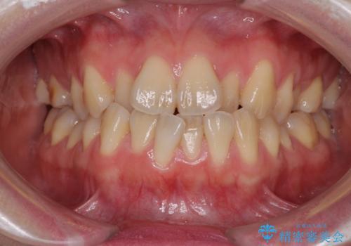 ハーフリンガル 反対咬合の改善の症例 治療前