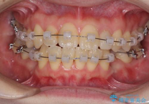 内側に倒れた歯並びの改善 クリアブラケットによる矯正治療の治療中