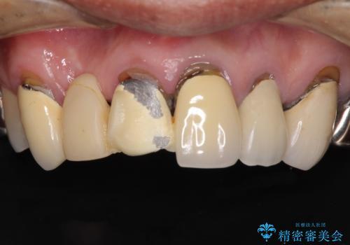 欠けてしまった前歯のブリッジをオールセラミックブリッジへの治療前