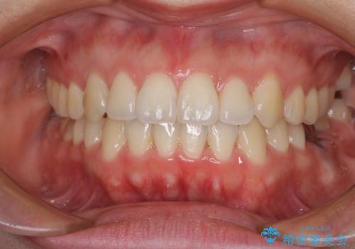 前歯のデコボコをワイヤー矯正できれいにの症例 治療後