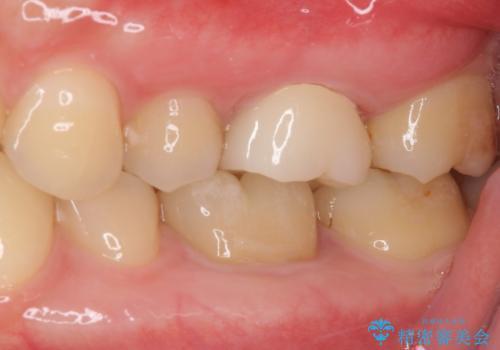 奥歯のむし歯治療 セラミックとゴールドインレーの治療後