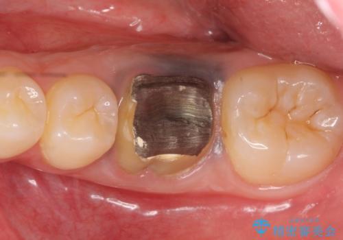 オールセラミッククラウン 治療途中の歯の再治療の治療前