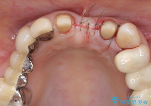 前歯ブリッジのやりかえの治療後