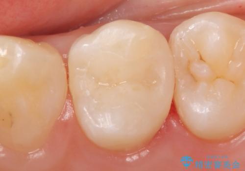セラミックインレー 虫歯で欠けた歯の治療の治療後