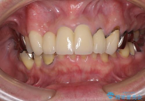 欠けてしまった前歯のブリッジをオールセラミックブリッジへの治療後