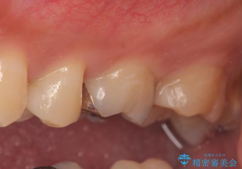 セラミックインレー 虫歯と指摘された奥歯の治療の治療後