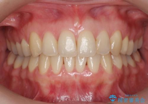 上の前歯が一部引っ込んでいる 下のがたがた マウスピース矯正の症例 治療後