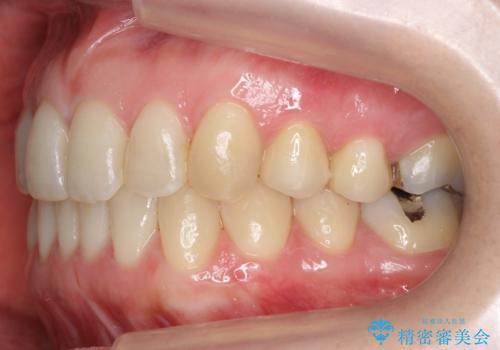 上の前歯が一部引っ込んでいる 下のがたがた マウスピース矯正の治療後