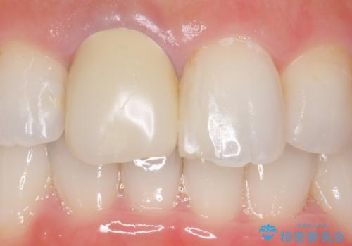 オールセラミッククラウン(スペシャル) 不揃いな前歯を綺麗にの治療前