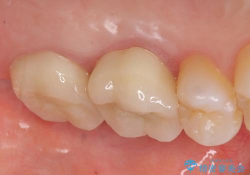 オールセラミッククラウン 疼く奥歯の治療の治療後