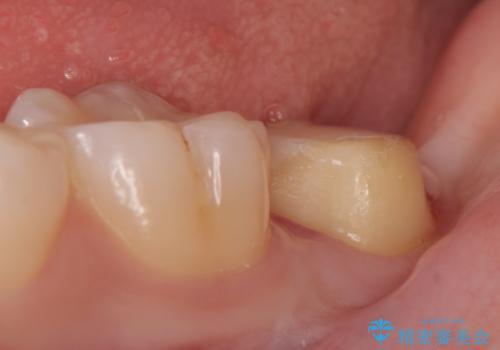オールセラミッククラウン 奥歯の虫歯・深いポケットの除去の治療中