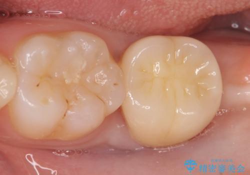 オールセラミッククラウン 奥歯の虫歯・深いポケットの除去の症例 治療後