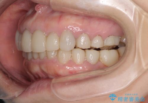 この際全てをしっかりと治療したい 総合歯科治療の治療中