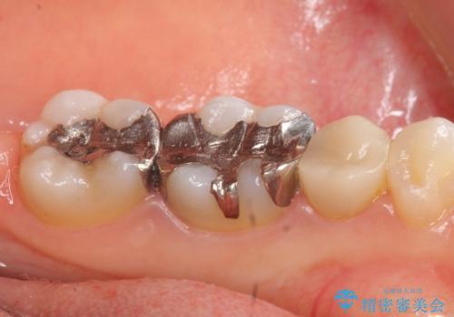 オールセラミッククラウン セラミックインレー 銀歯を白い歯への治療前