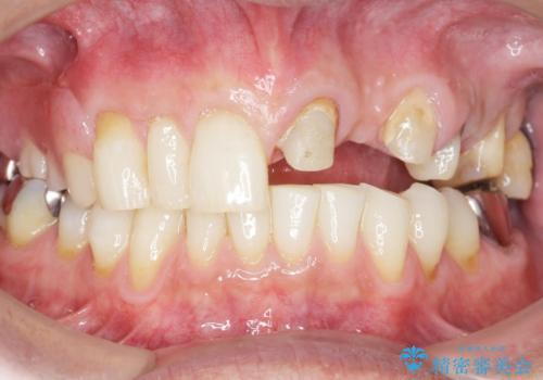 歯が折れた どうしても抜きたくない 歯の牽引で保存可能にの治療中