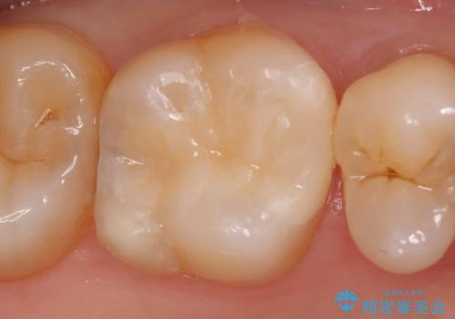 セラミックインレー 痛む歯の治療の治療後