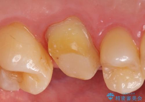 オールセラミッククラウン 精密根管治療~神経が死んでしまった歯の治療~の治療中