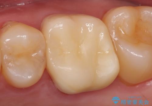 オールセラミッククラウン 精密根管治療~神経が死んでしまった歯の治療~の治療後