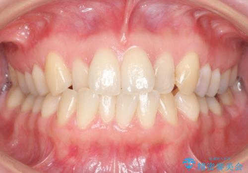 上の前歯が一部引っ込んでいる 下のがたがた マウスピース矯正の症例 治療前