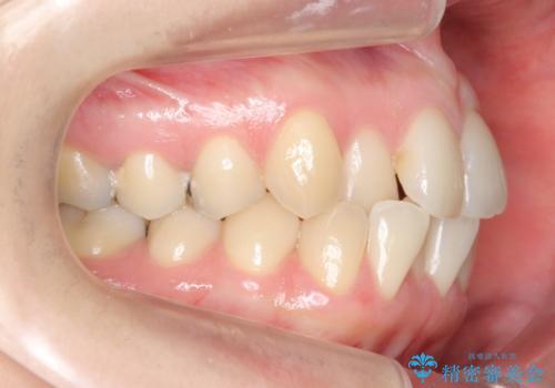 上の前歯が一部引っ込んでいる 下のがたがた マウスピース矯正の治療前