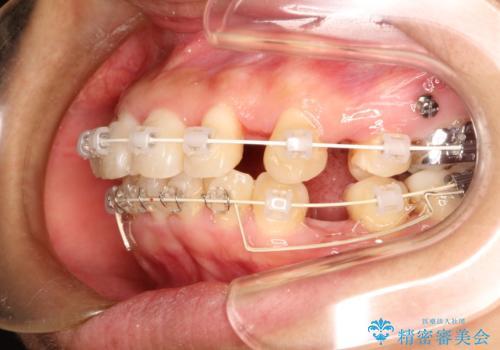 上下の歯のガタガタ ワイヤーでの抜歯矯正で整った歯並びへの治療中