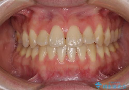 ハーフリンガル 反対咬合の改善の症例 治療後