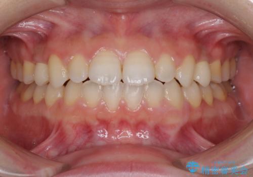 矯正治療とインプラント治療を同時に 総合歯科診療の治療後
