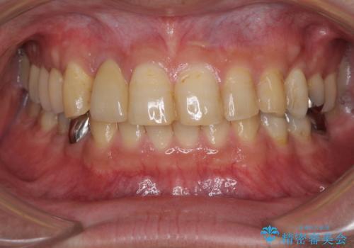 割れてしまった前歯 インプラントによる補綴治療の治療後