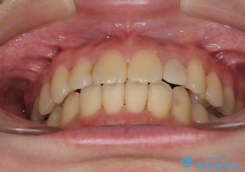 内側に倒れた歯並びの改善 クリアブラケットによる矯正治療の治療後