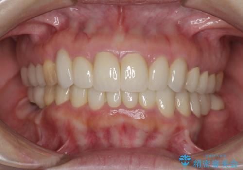 この際全てをしっかりと治療したい 総合歯科治療の症例 治療後